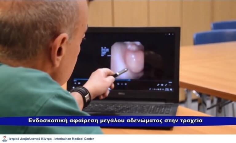 Mucus Gland Adenoma